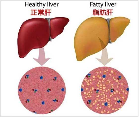 肝病名医谢玉民:营养不良也会导致脂肪肝